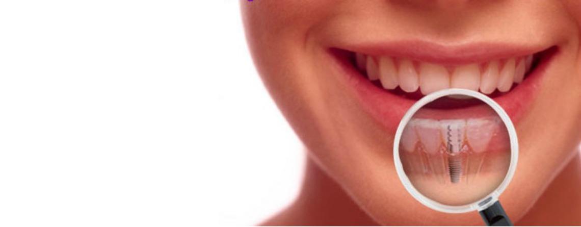 Dental Implants Rockville Maryland
