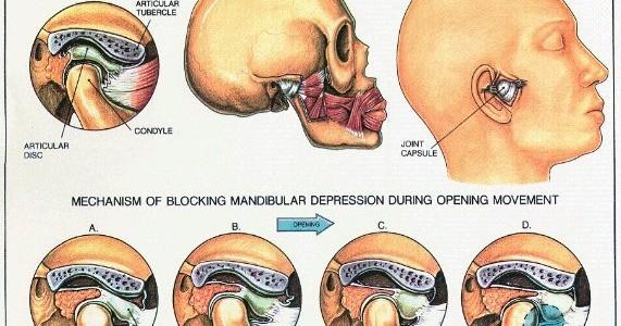 tmj-dentist
